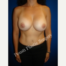 45-54 year old woman treated with Breast Implants before 3334023