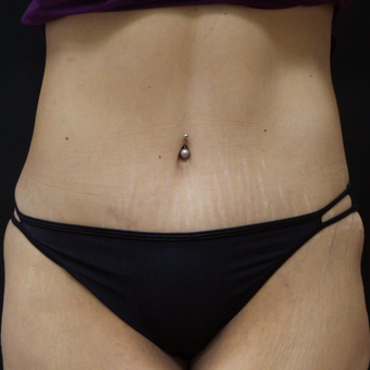 Tummy Tuck and Liposuction after 3014861