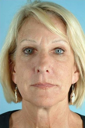 55 Year Old Female Treated for Unwanted Facial Lines after 1016590