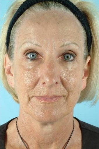 55 Year Old Female Treated for Unwanted Facial Lines before 1016590