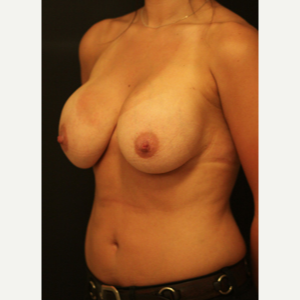 25-34 year old woman treated with Breast Lift before 3742419