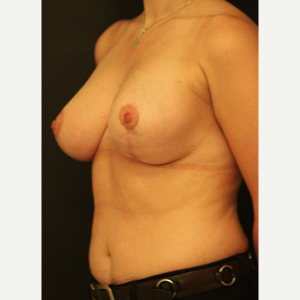 25-34 year old woman treated with Breast Lift after 3742419