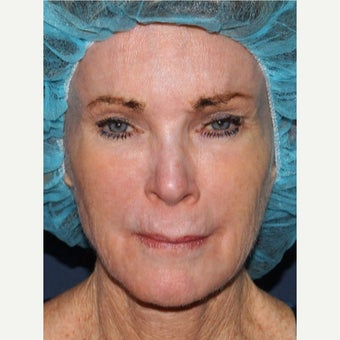65-74 year old woman treated with Voluma before 1704798