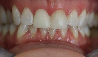 how to whiten and improove your smile with Composite Bonding after 3096978