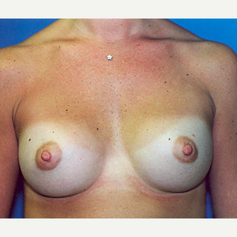 18-24 year old woman treated with Breast Augmentation after 3287193