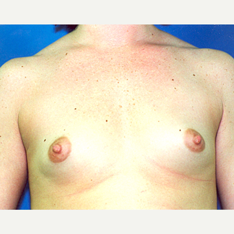 18-24 year old woman treated with Breast Augmentation before 3287193