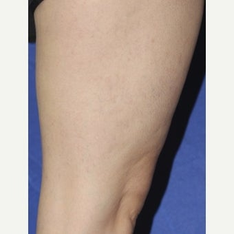 35-44 year old woman treated with Sclerotherapy after 2036988