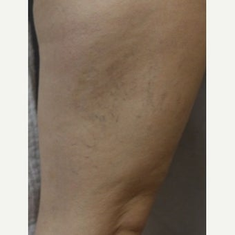 35-44 year old woman treated with Sclerotherapy before 2036988