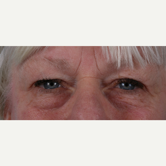 55-64 year old woman treated with Eyelid Surgery before 3055197