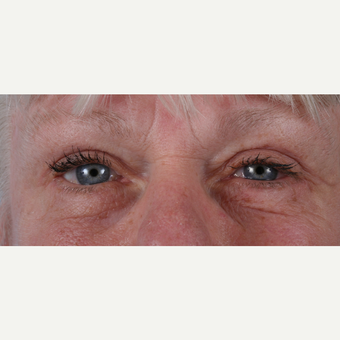 55-64 year old woman treated with Eyelid Surgery after 3055197