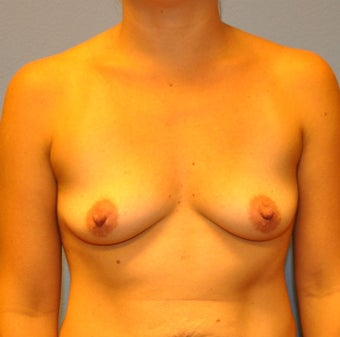 Breast Augmentation, Breast Implants before 1166150