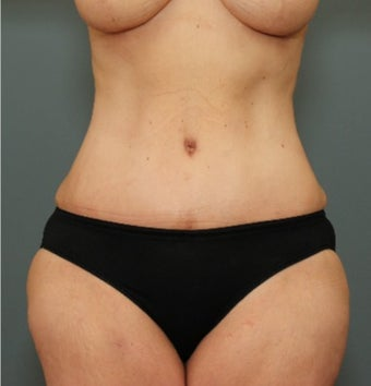 45-54 year old woman requesting Tummy Tuck after weight loss after 3070063