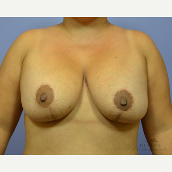 25-34 year old woman treated with Breast Lift with Implants after 3329424