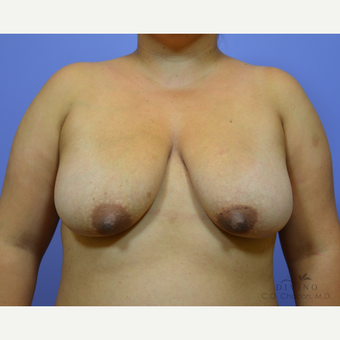 25-34 year old woman treated with Breast Lift with Implants before 3329424