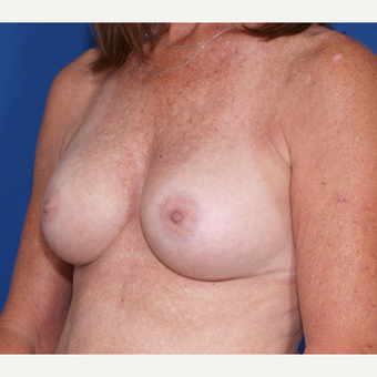 55-64 year old woman treated with Ideal Implant after 3300848