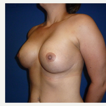25-34 year old woman treated with Ideal Implant after 3300711