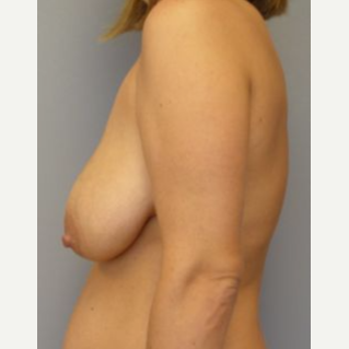 25-34 year old woman treated with Breast Lift with Implants before 3122387