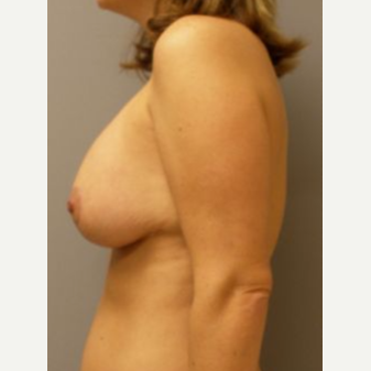 25-34 year old woman treated with Breast Lift with Implants after 3122387