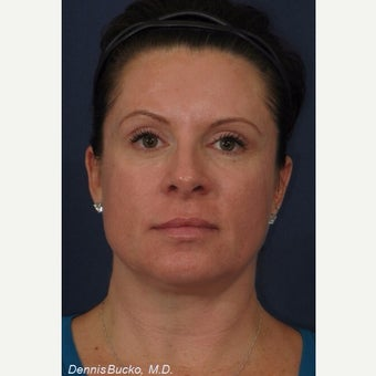 35-44 year old woman treated with Cosmelan for the treatment of age spots and melasma after 2243413