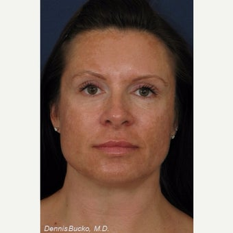 35-44 year old woman treated with Cosmelan for the treatment of age spots and melasma before 2243413