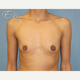 25-34 year old woman treated with Nipple Surgery before 3292428