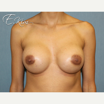 25-34 year old woman treated with Nipple Surgery after 3292428