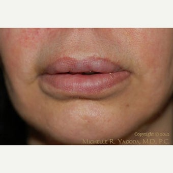 55-64 year old woman treated with Lip Reduction after 2444212