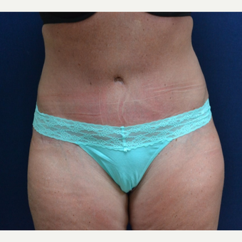 Tummy Tuck after 3651629