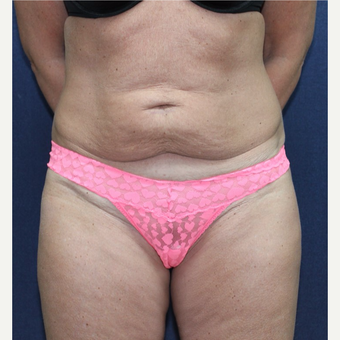 Tummy Tuck before 3651629