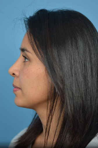 25-34 year old woman treated with Rhinoplasty after 3781482
