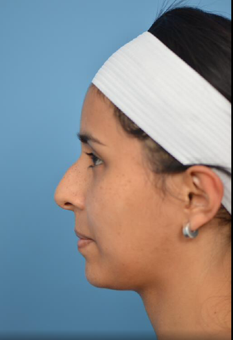 25-34 year old woman treated with Rhinoplasty before 3781482