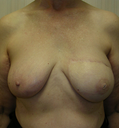 Breast Reconstruction after 1477090
