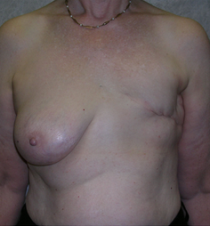 Breast Reconstruction before 1477090