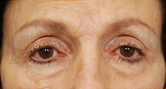 Eye Bag Surgery before 886808