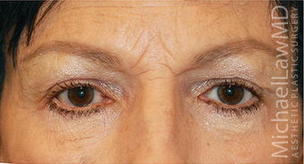 Eye Bag Surgery after 886808