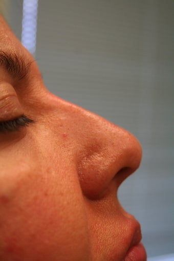 Non-surgical Rhinoplasty after 359600