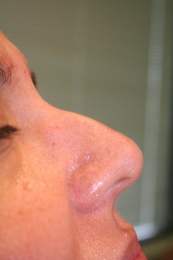 Non-surgical Rhinoplasty before 359600