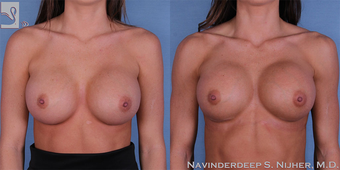 18-24 year old woman treated with Breast Implant Revision before 3768392