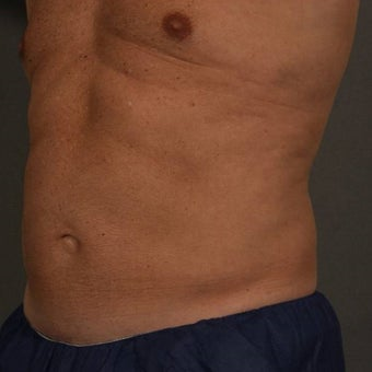 55-64 year old man treated with CoolSculpting 1611919