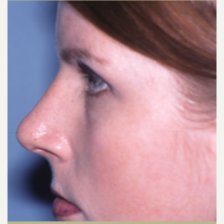18-24 year old woman treated with Rhinoplasty after 3042795