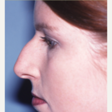 18-24 year old woman treated with Rhinoplasty before 3042795