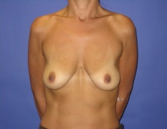 41 year old seeks breast lift before 1322768