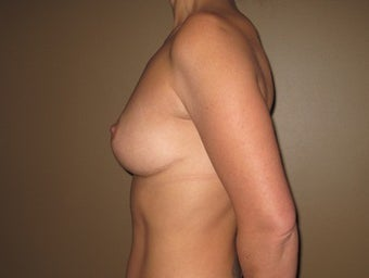 41 year old seeks breast lift 1322768
