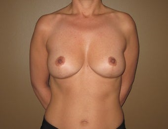41 year old seeks breast lift after 1322768