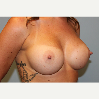 25-34 year old woman treated with Breast Augmentation after 3570229