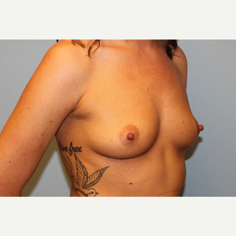 25-34 year old woman treated with Breast Augmentation before 3570229