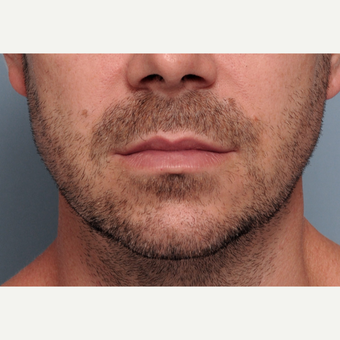 35-44 year old man treated with Chin and Jawline Implant