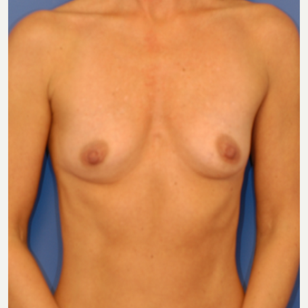 25-34 year old woman treated with Breast Augmentation before 3619064