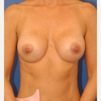 25-34 year old woman treated with Breast Augmentation after 3619064