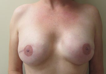 Nipple Areola Tattoo
